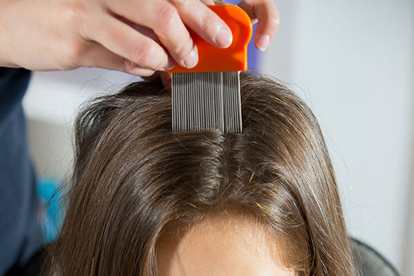 Tips on how to get rid of head lice